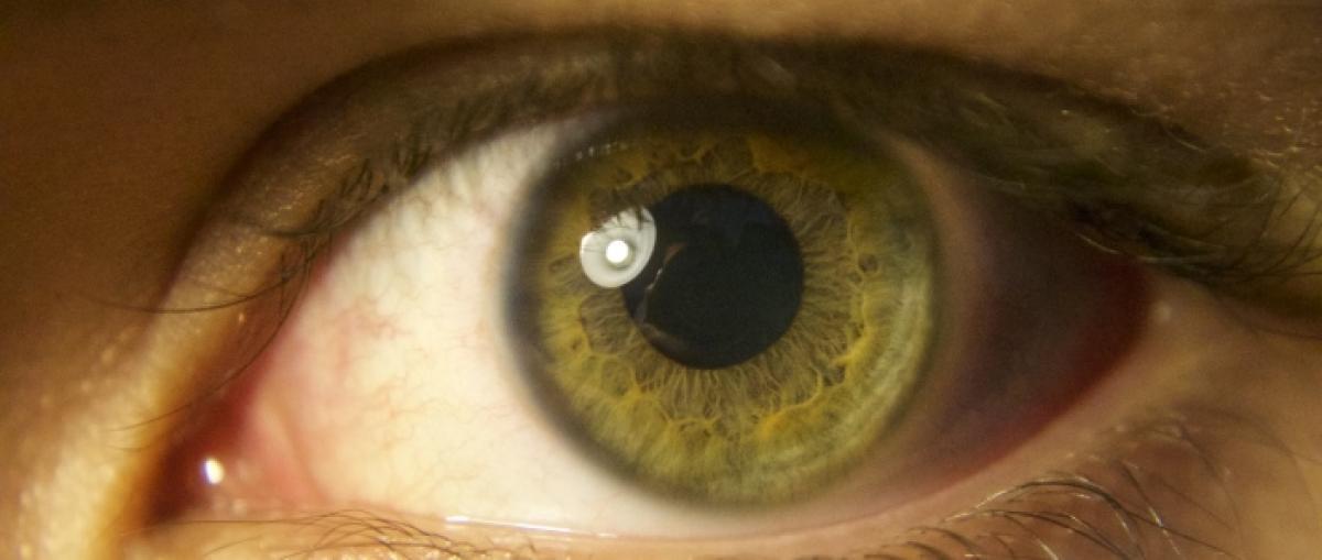 Google crea una IA capaz de predecir enfermedades cardiovasculares estudiando el ojo